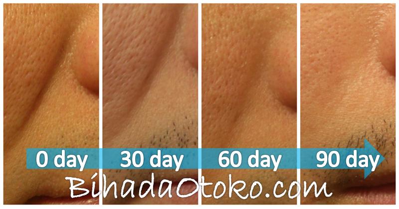 顔のたるみの原因と対策!男も改善したプロ推奨たるみ化粧品