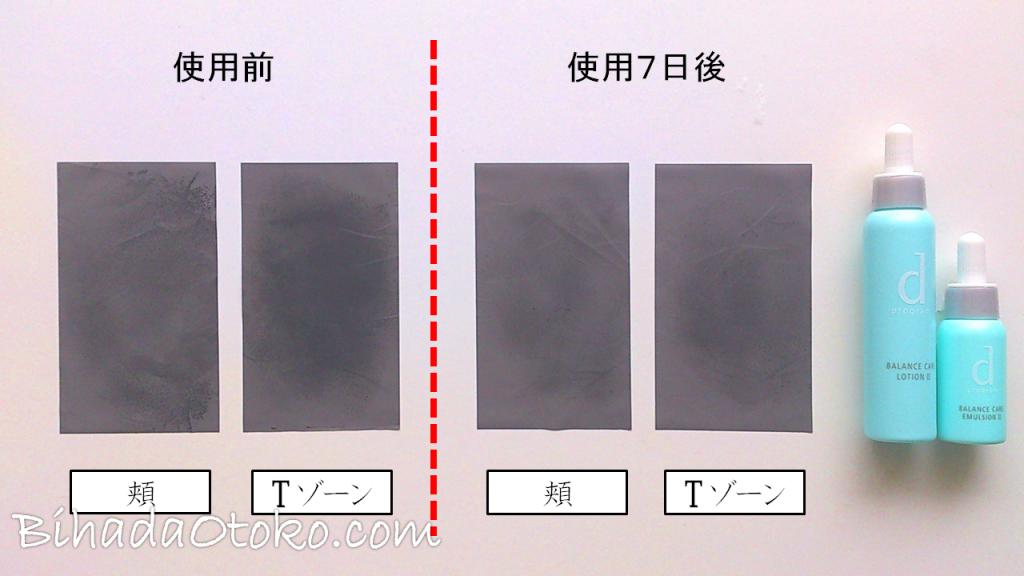 dプログラムどう?男の肌で全4種口コミ検証&化粧水・乳液の効果